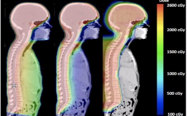 Protonentherapie bei der Behandlung von Leukämie: Ein neuer Ansatz